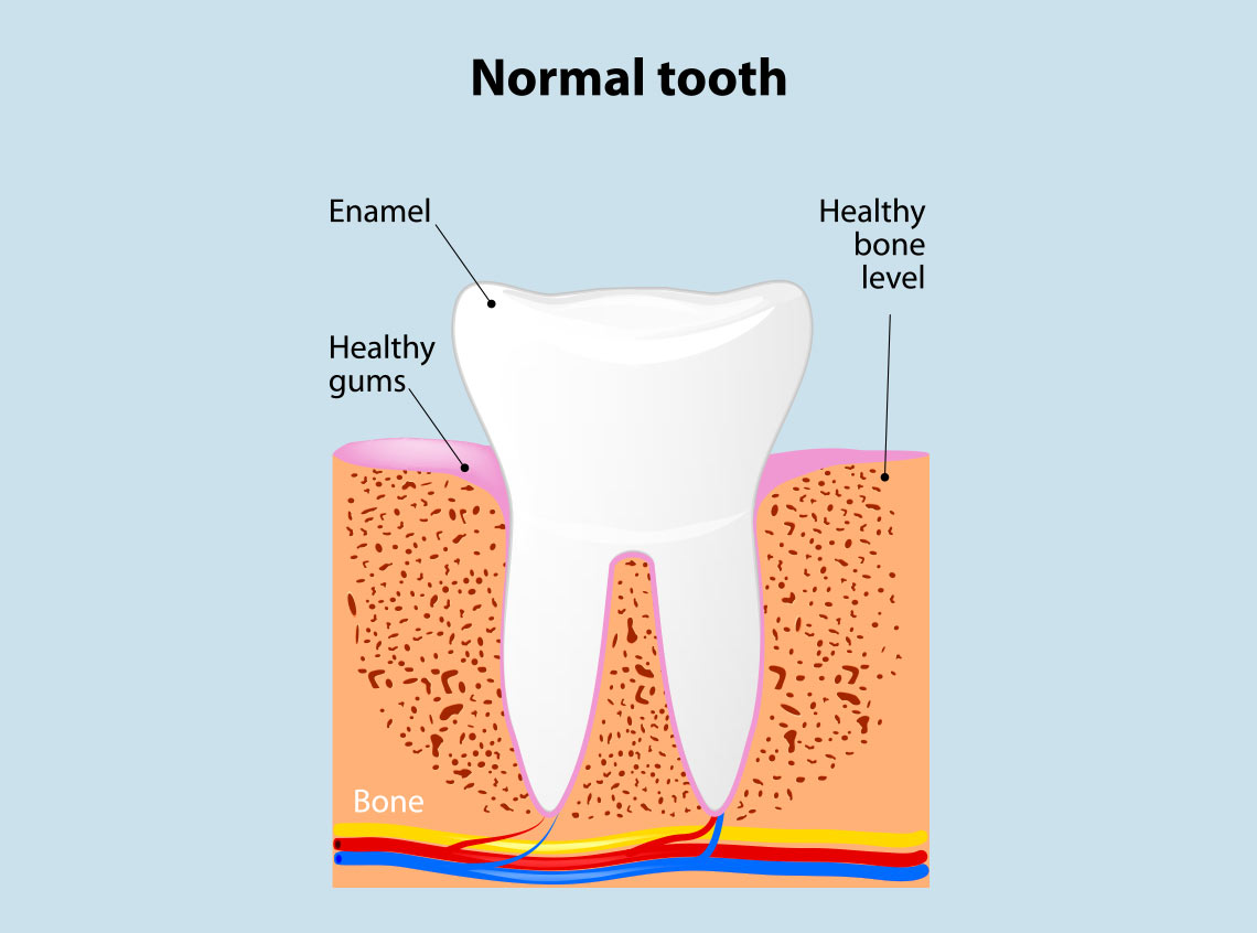 gum disease treatment Ivanhoe