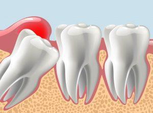Paediatric Dentistry Balwyn North