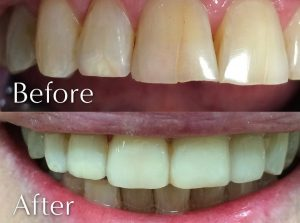 dental veneers Doncaster