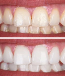 teeth whitening balwyn north