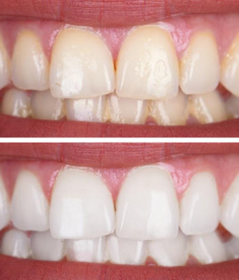 teeth whitening balwyn north