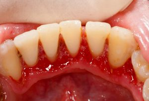 Periodontitis and Hypertension (HBP)