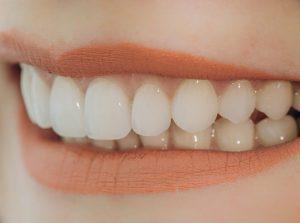 Cosmetic Dentist Balwyn North
