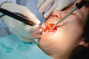 How Often Should You Visit The Dentist