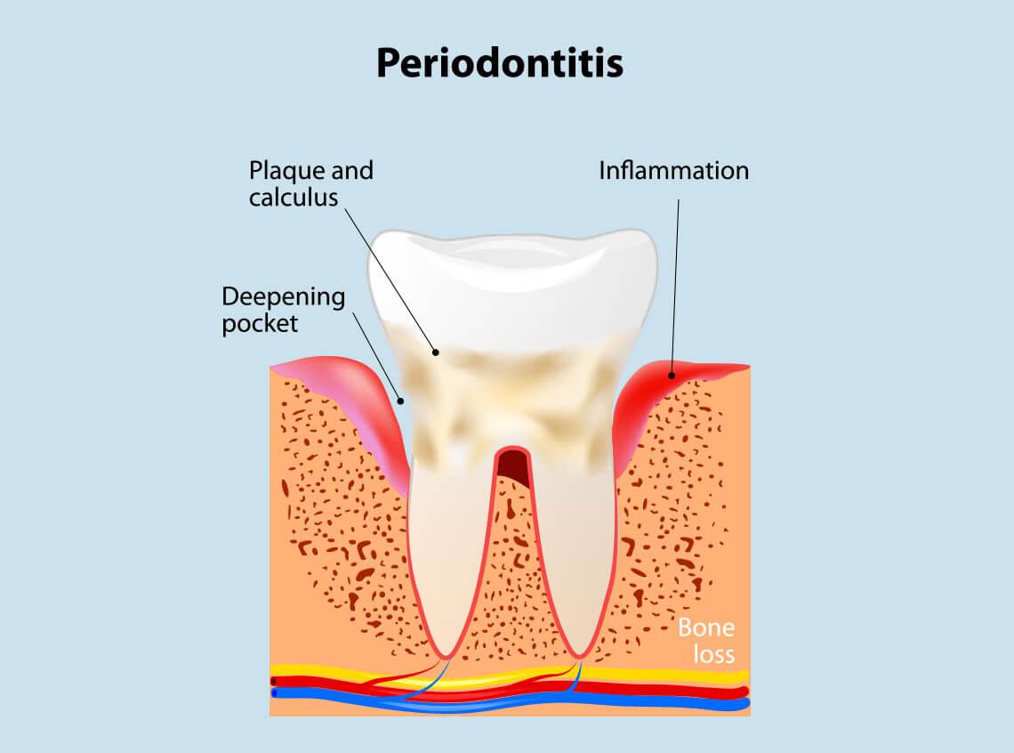 periodontal disease Balwyn North