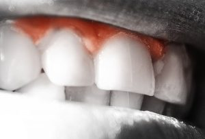 Gingivitis treatment Balwyn North