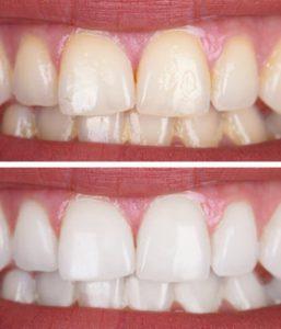 Professional Teeth Whitening Balwyn North